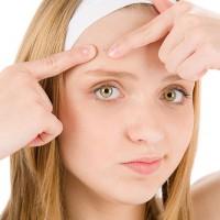 Acne e tratamentos [Beleza da Namorada]