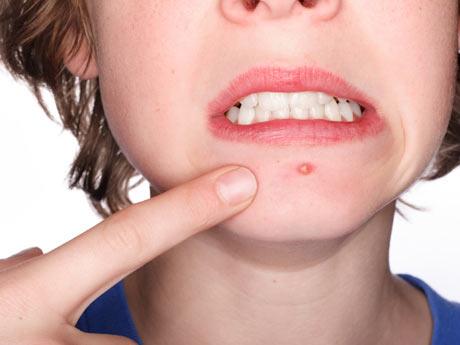 acne-conglobata