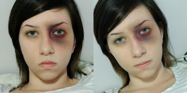 Bruises.jpg